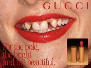 agenesia dentale conseguenze struttura corporeau